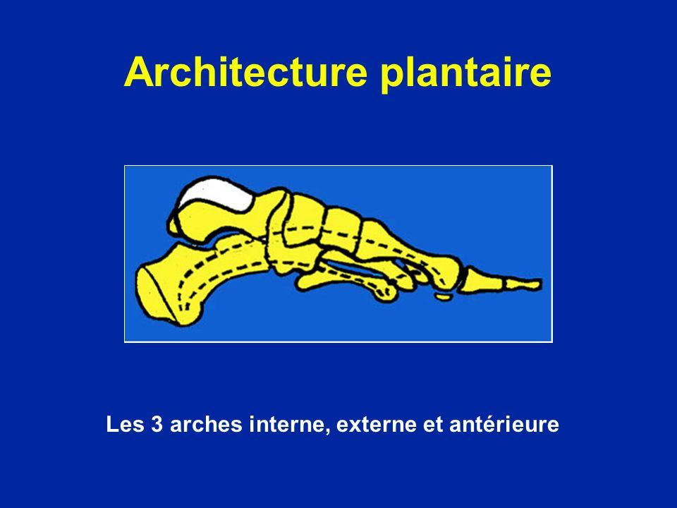 Architecture plantaire Les 3 arches interne, externe et antérieure