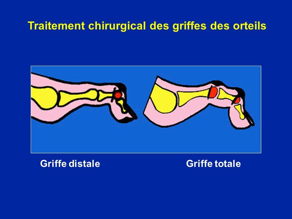 Griffe distale Griffe totale Traitement chirurgical des griffes des orteils