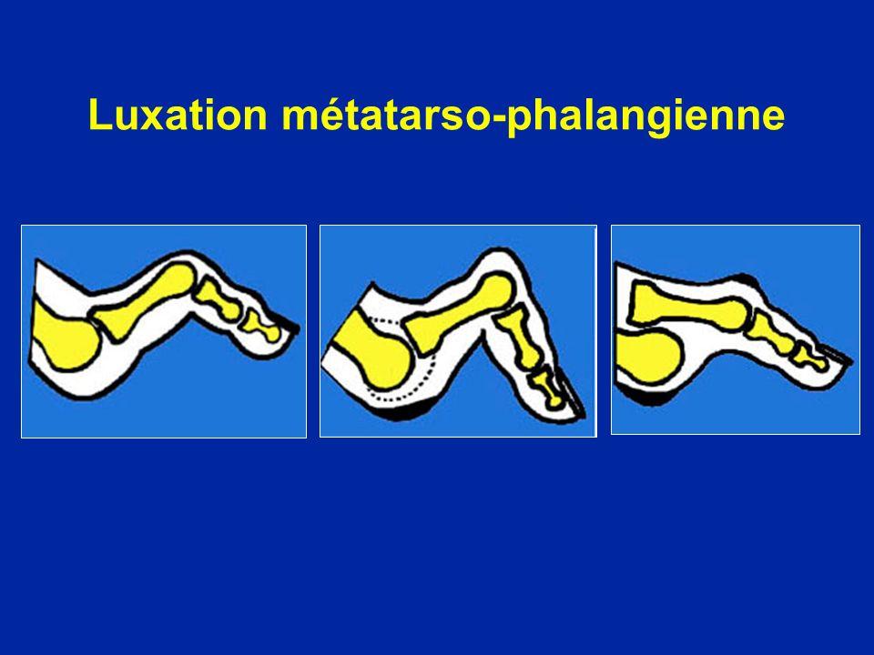 Luxation métatarso-phalangienne