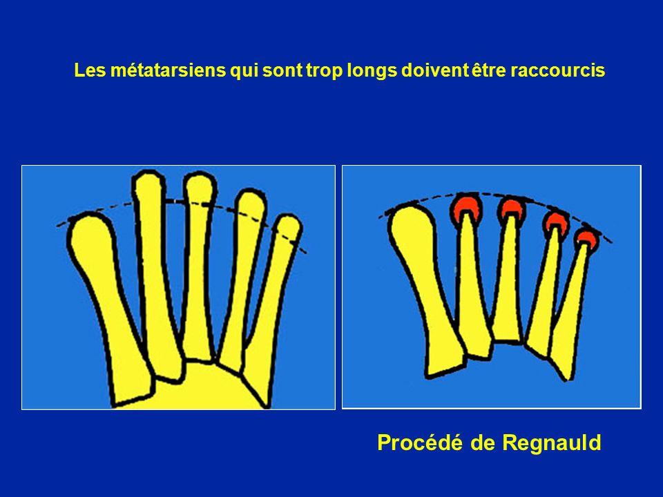 Procédé de Regnauld Les métatarsiens qui sont trop longs doivent être raccourcis