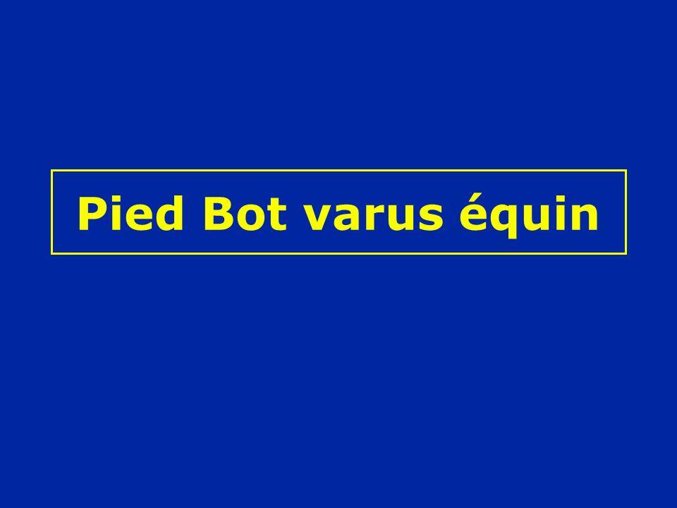 Pied Bot varus équin