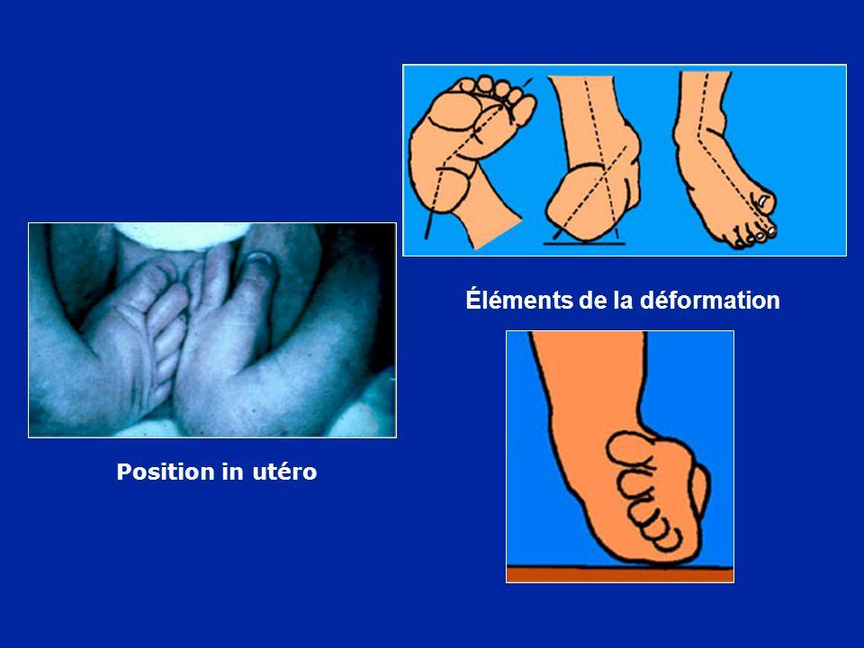 Position in utéro Éléments de la déformation