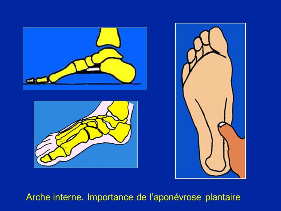 Radiologie du pied plat Astragale verticalisé (plongeant)