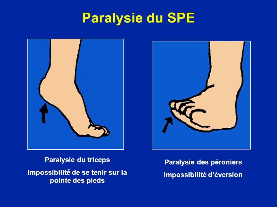 Paralysie du SPE Paralysie du triceps Impossibilité de se tenir sur la pointe des pieds Paralysie des péroniers Impossibilité déversion
