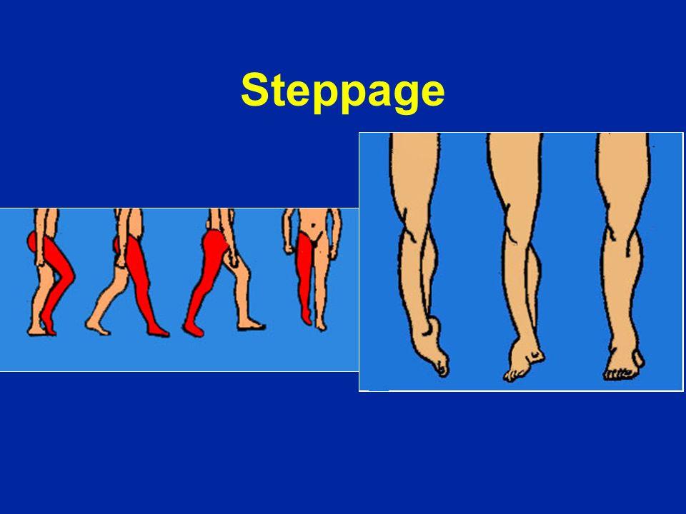 Steppage
