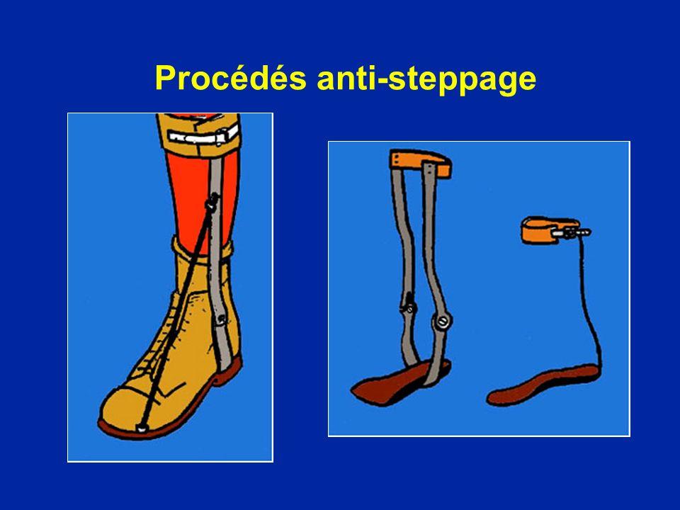 Procédés anti-steppage