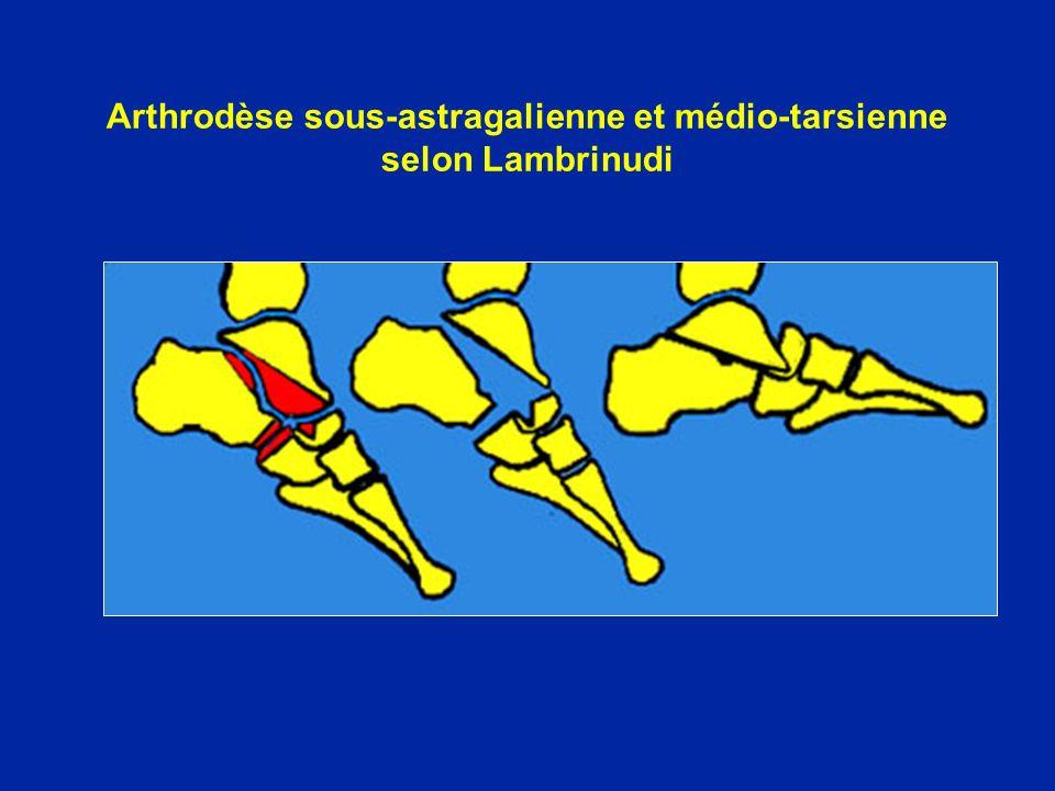 Arthrodèse sous-astragalienne et médio-tarsienne selon Lambrinudi
