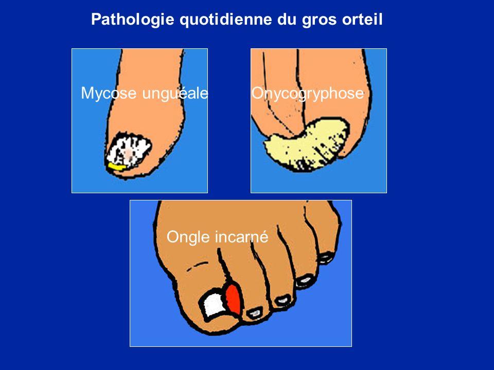 Pathologie quotidienne du gros orteil Mycose unguéale Onycogryphose Ongle incarné