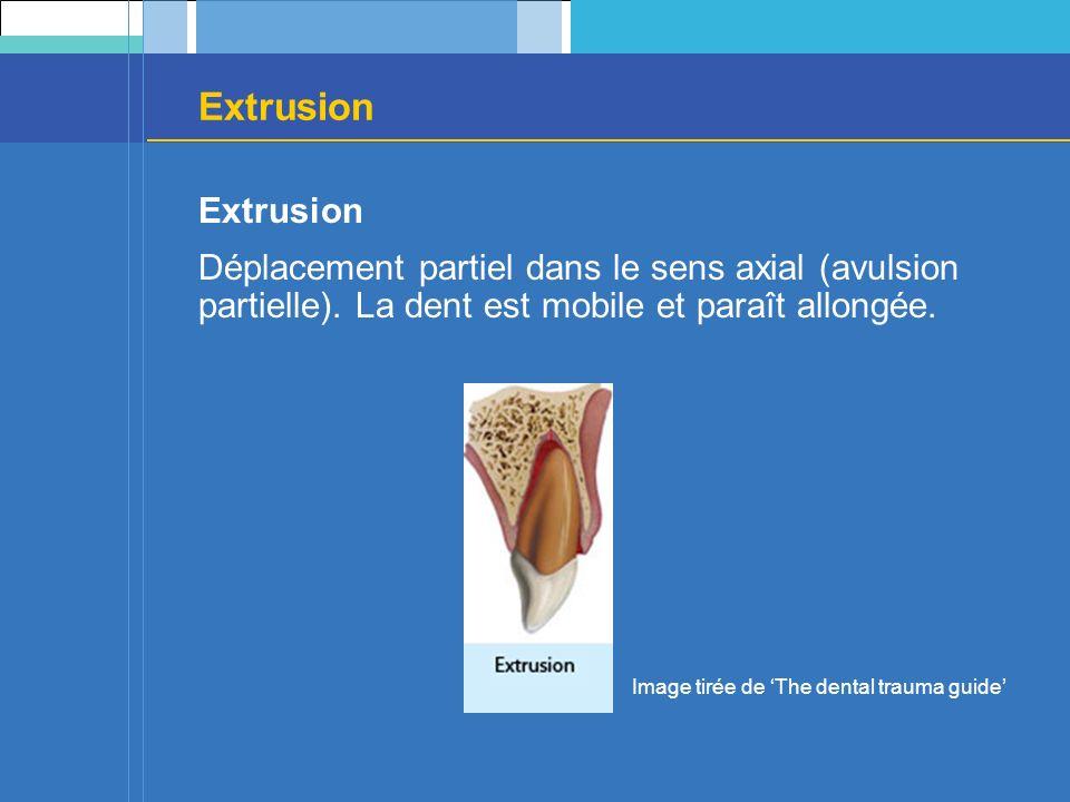 Extrusion Déplacement partiel dans le sens axial (avulsion partielle). La dent est mobile et paraît allongée. Image tirée de The dental trauma guide