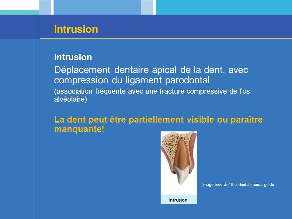 Intrusion Déplacement dentaire apical de la dent, avec compression du ligament parodontal (association fréquente avec une fracture compressive de los