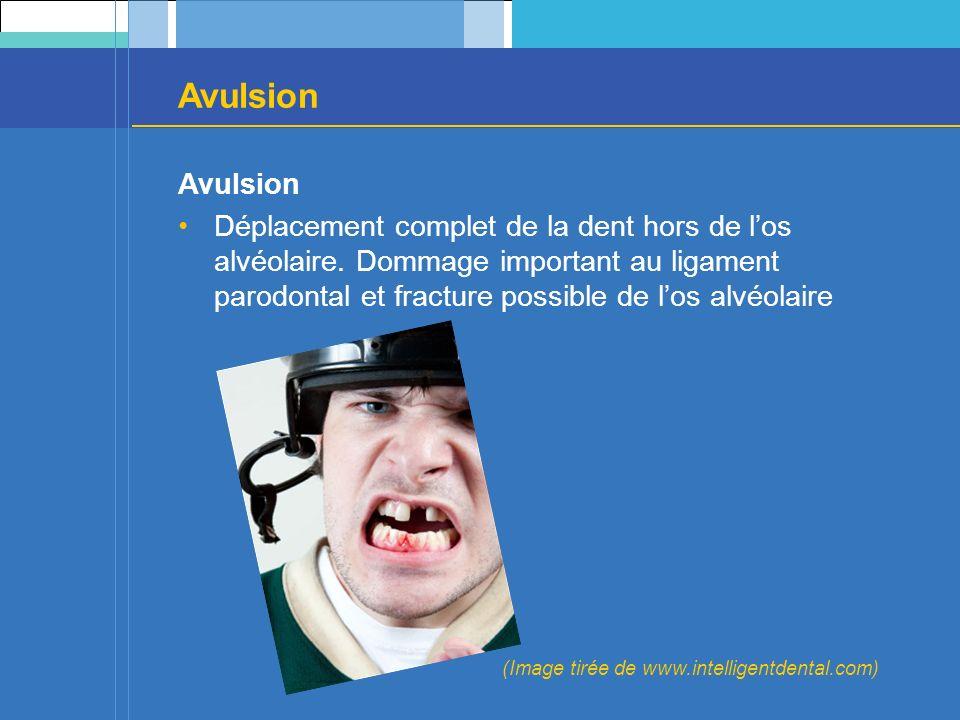 Avulsion Déplacement complet de la dent hors de los alvéolaire. Dommage important au ligament parodontal et fracture possible de los alvéolaire (Image