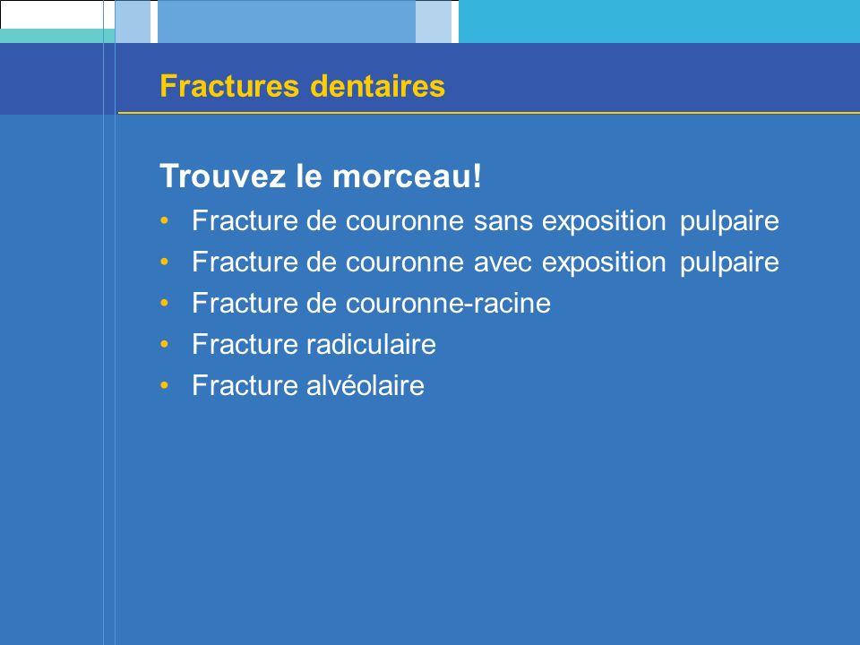 Fractures dentaires Trouvez le morceau! Fracture de couronne sans exposition pulpaire Fracture de couronne avec exposition pulpaire Fracture de couron