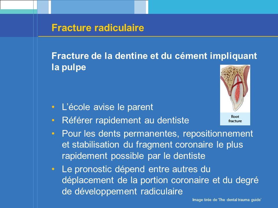 Fracture radiculaire Fracture de la dentine et du cément impliquant la pulpe Lécole avise le parent Référer rapidement au dentiste Pour les dents perm