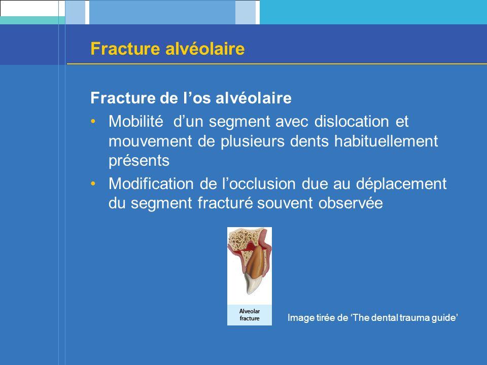 Fracture alvéolaire Fracture de los alvéolaire Mobilité dun segment avec dislocation et mouvement de plusieurs dents habituellement présents Modification de locclusion due au déplacement du segment fracturé souvent observée Image tirée de The dental trauma guide