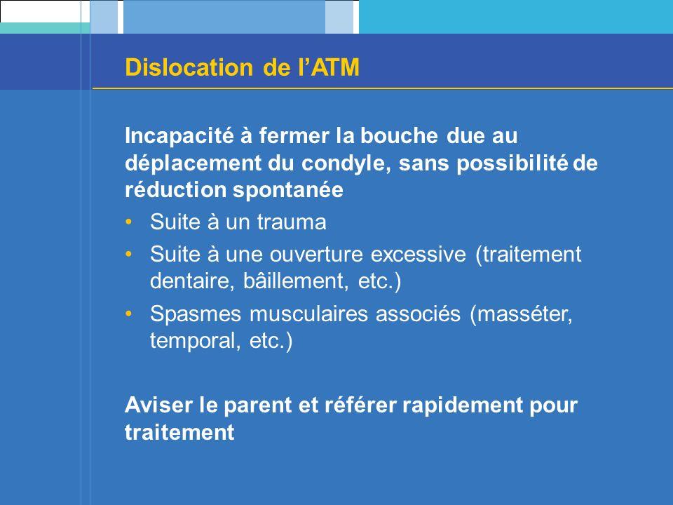 Dislocation de lATM Incapacité à fermer la bouche due au déplacement du condyle, sans possibilité de réduction spontanée Suite à un trauma Suite à une