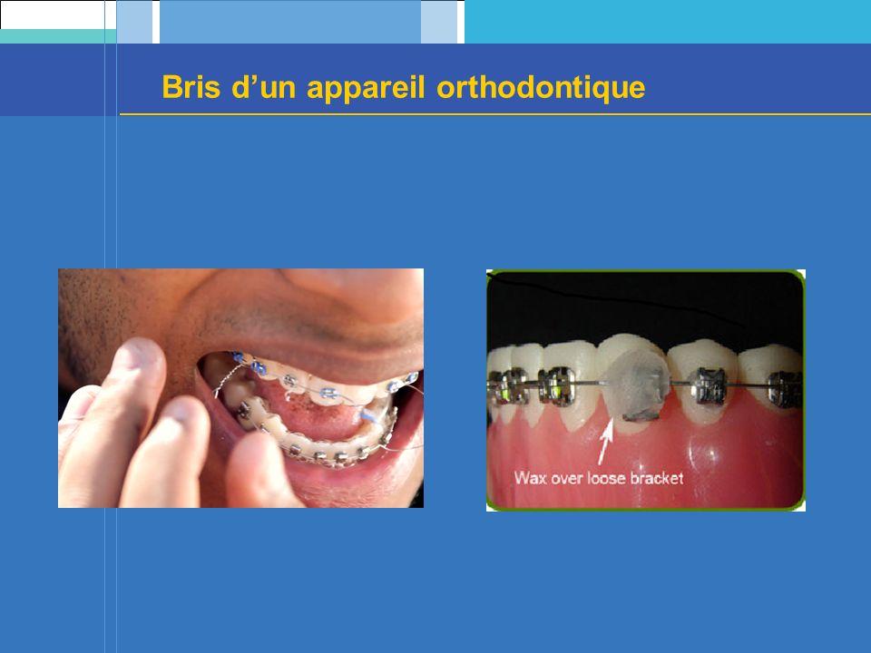 Bris dun appareil orthodontique