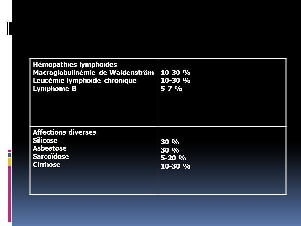Hémopathies lymphoïdes Macroglobulinémie de Waldenström Leucémie lymphoïde chronique Lymphome B 10-30 % 10-30 % 5-7 % Affections diverses Silicose Asb
