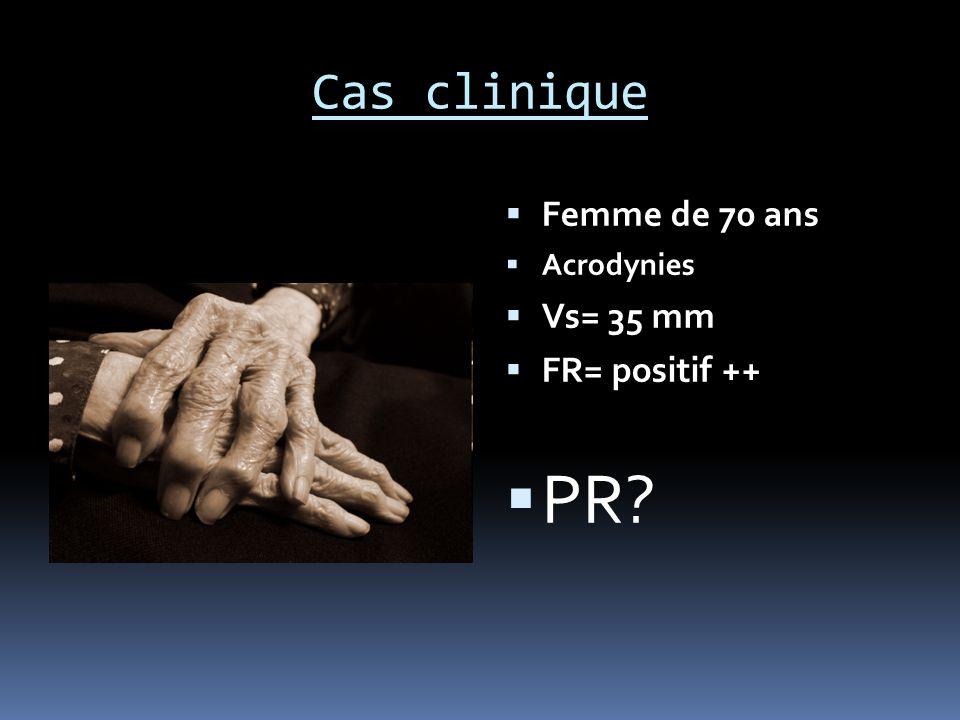 Cas clinique Femme de 70 ans Acrodynies Vs= 35 mm FR= positif ++ PR?