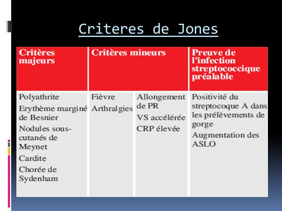 Criteres de Jones