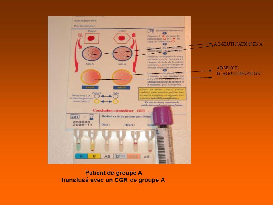AGGLUTINATION EN A ABSENCE D AGGLUTINATION Patient de groupe A transfusé avec un CGR de groupe A