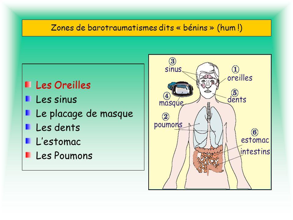 Zones de barotraumatismes dits « bénins » (hum !) Les Oreilles Les sinus Le placage de masque Les dents Lestomac Les Poumons Les Oreilles