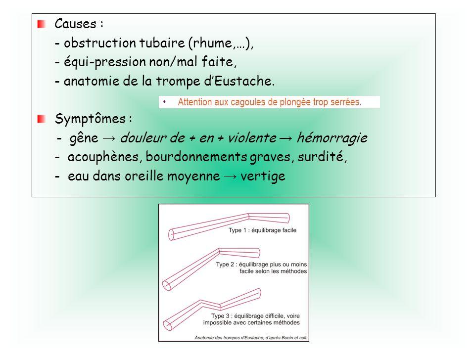 Causes : - obstruction tubaire (rhume,…), - équi-pression non/mal faite, - anatomie de la trompe dEustache. Symptômes : - gêne douleur de + en + viole