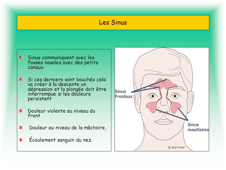 Les Sinus Sinus communiquent avec les fosses nasales avec des petits canaux Si ces derniers sont bouchés cela va créer à la descente un dépression et