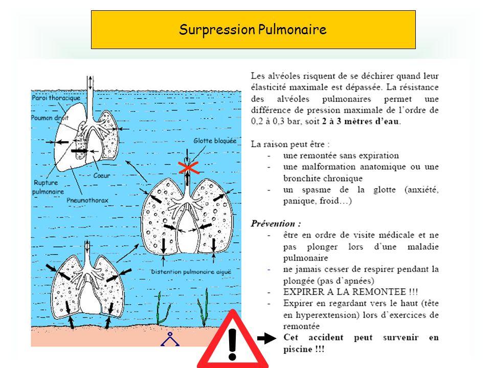 Surpression pulmonaire Surpression Pulmonaire