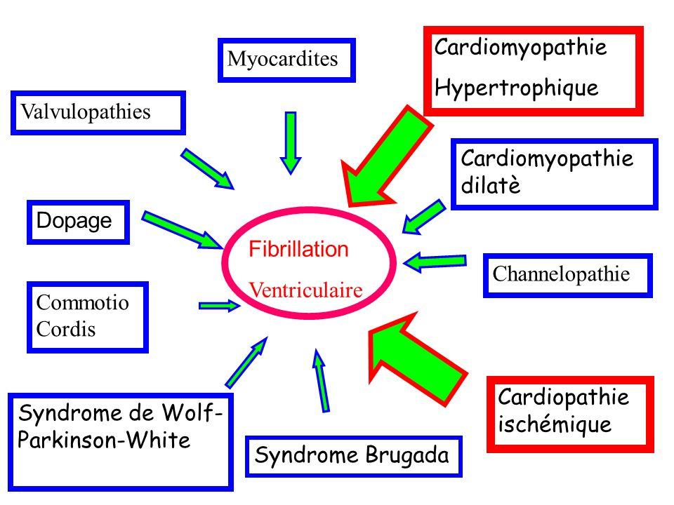 Mort subite Fibrillation Ventriculaire Cardiopathie ischémique Cardiomyopathie dilatè Cardiomyopathie Hypertrophique Myocardites Channelopathie Commotio Cordis Syndrome de Wolf- Parkinson-White Valvulopathies Dopage Syndrome Brugada