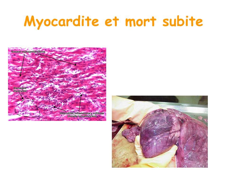 Myocardite et mort subite