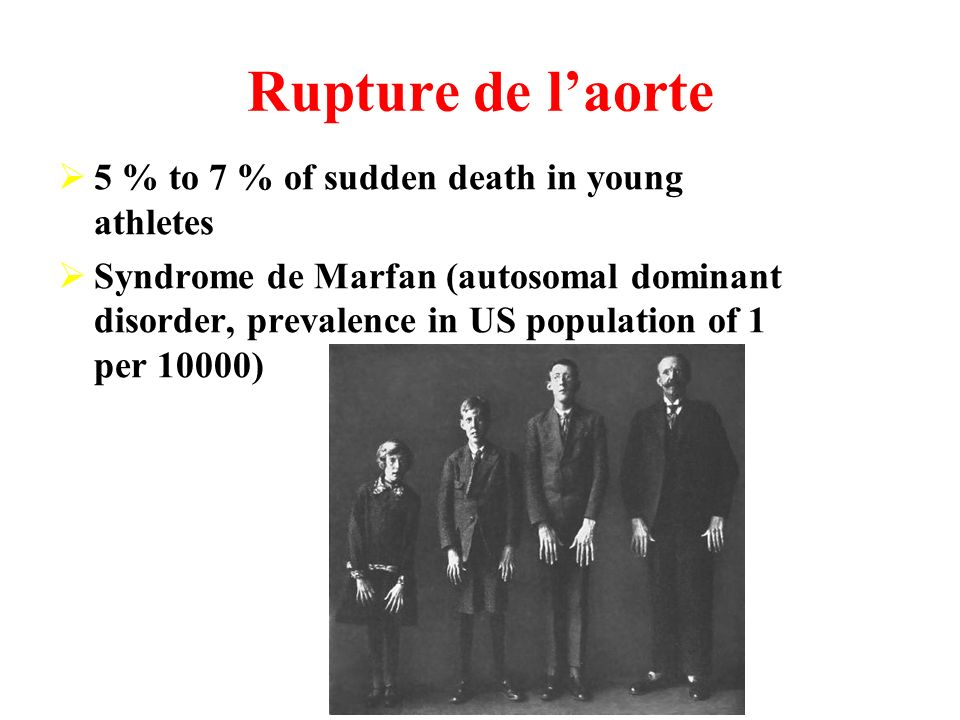 Rupture de laorte 5 % to 7 % of sudden death in young athletes Syndrome de Marfan (autosomal dominant disorder, prevalence in US population of 1 per 10000)