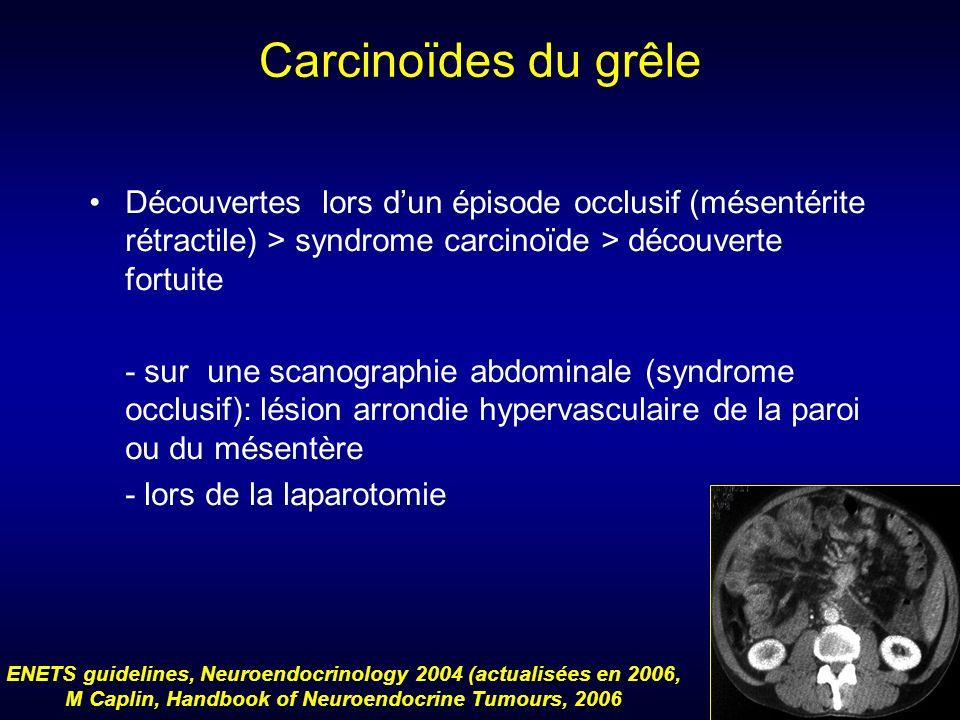 Carcinoïdes du grêle Découvertes lors dun épisode occlusif (mésentérite rétractile) > syndrome carcinoïde > découverte fortuite - sur une scanographie