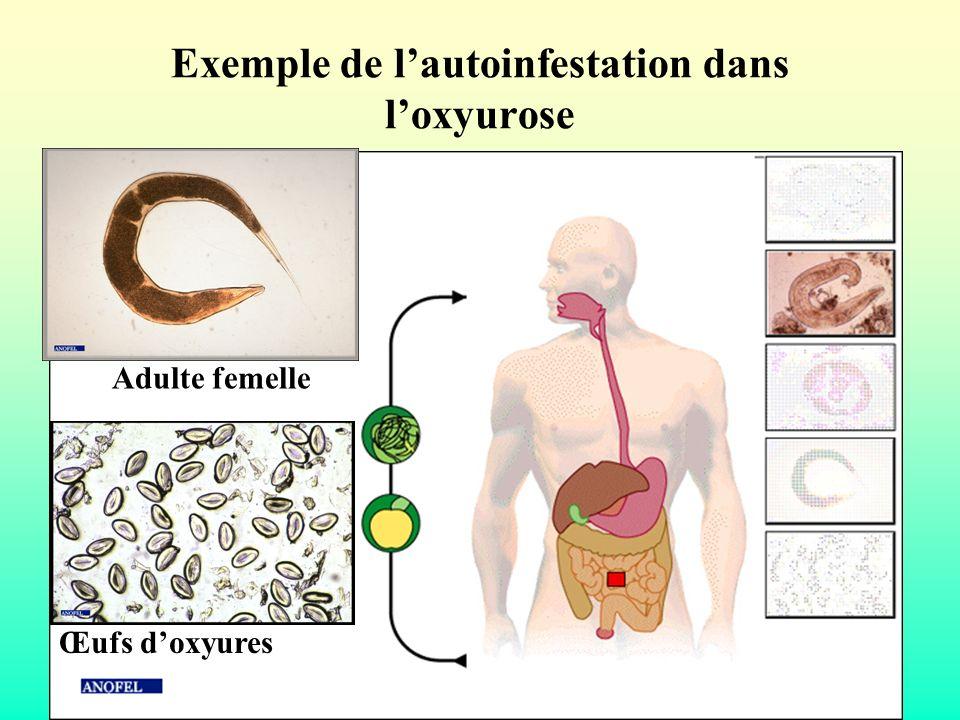 Exemple de lautoinfestation dans loxyurose Œufs doxyures Adulte femelle