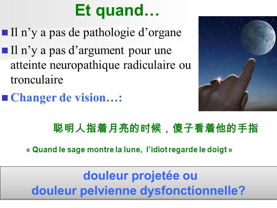 Et quand… Il ny a pas de pathologie dorgane Il ny a pas dargument pour une atteinte neuropathique radiculaire ou tronculaire Changer de vision…: doule