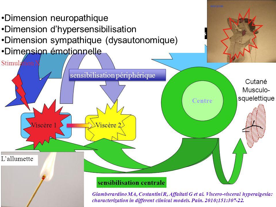 Bombardements dinflux sensibilisation centrale Centre Stimulation X Syndrome douloureux pelvien complexe Viscère 1Viscère 2 perturbations: de lintégra