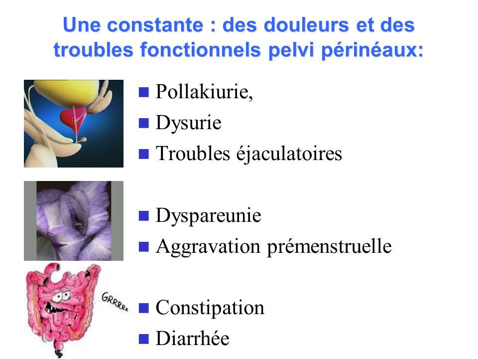 Une constante : des douleurs et des troubles fonctionnels pelvi périnéaux: Pollakiurie, Dysurie Troubles éjaculatoires Dyspareunie Aggravation prémens