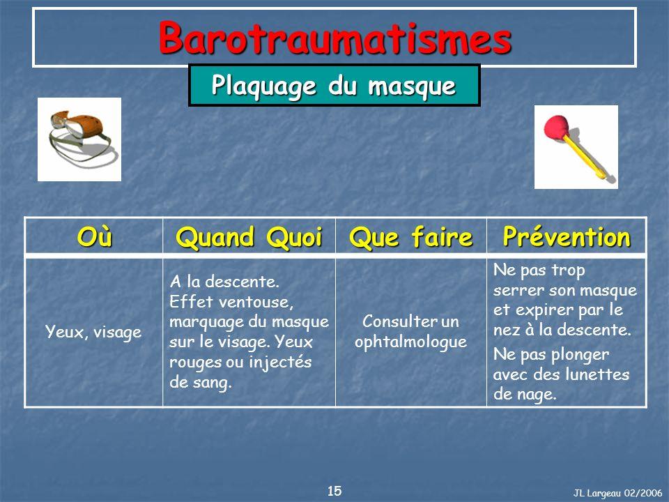 JL Largeau 02/2006 15 Barotraumatismes Plaquage du masque Où Quand Quoi Que faire Prévention Yeux, visage A la descente. Effet ventouse, marquage du m