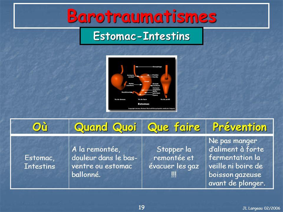 JL Largeau 02/2006 19 Barotraumatismes Estomac-Intestins Où Quand Quoi Que faire Prévention Estomac, Intestins A la remontée, douleur dans le bas- ven