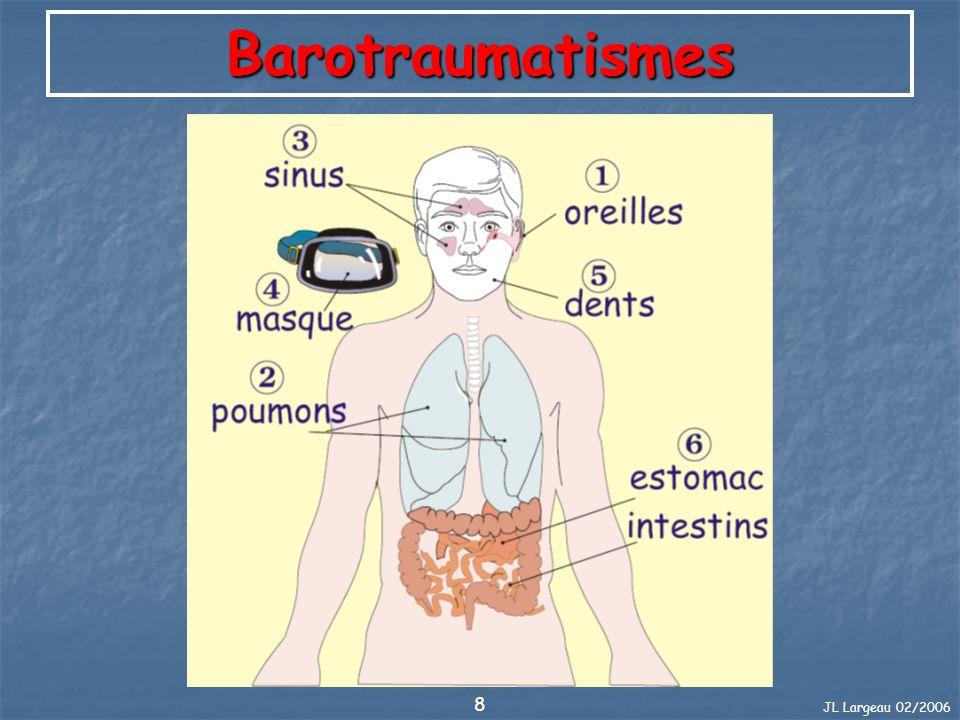 JL Largeau 02/2006 19 Barotraumatismes Estomac-Intestins Où Quand Quoi Que faire Prévention Estomac, Intestins A la remontée, douleur dans le bas- ventre ou estomac ballonné.