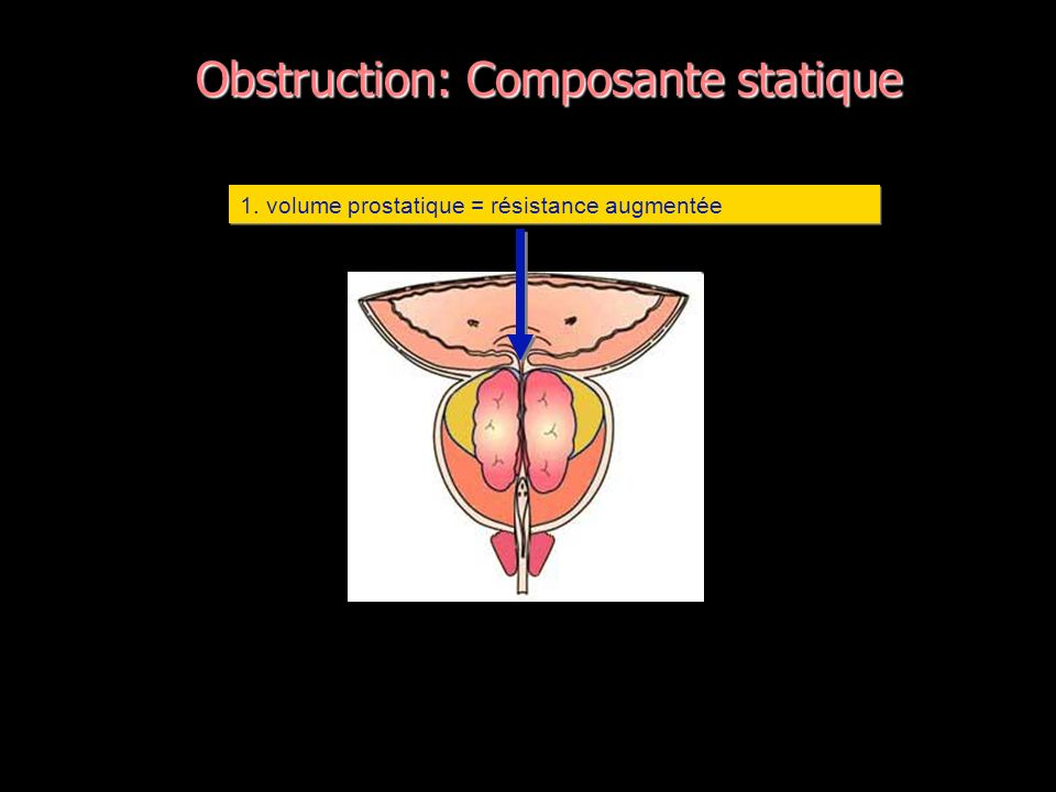 Obstruction: Composante statique 1. volume prostatique = résistance augmentée