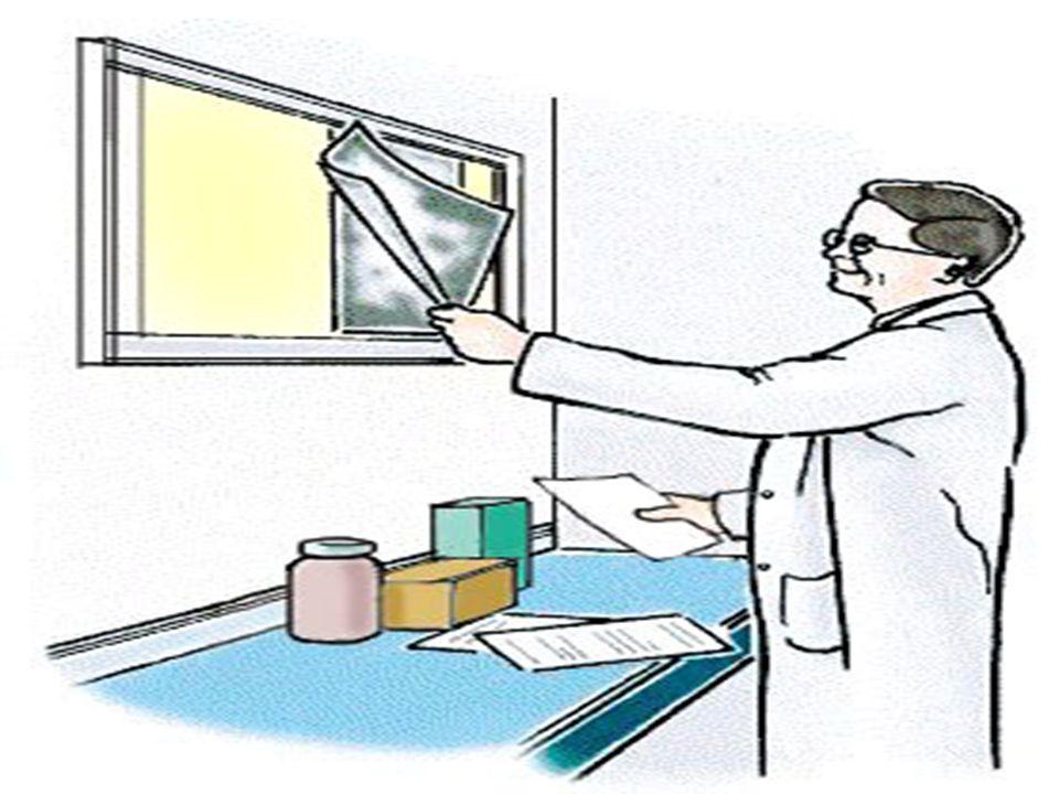 Bilan urologique Anamnèse et score IPSS Examen général & TR Sédiment urinaire Débitmétrie Mesure du résidu postmictionnel US abdominal: Reins, vessie, prostate Urée, créatinine Optionnel: cystoscopie, bilan urodynamique