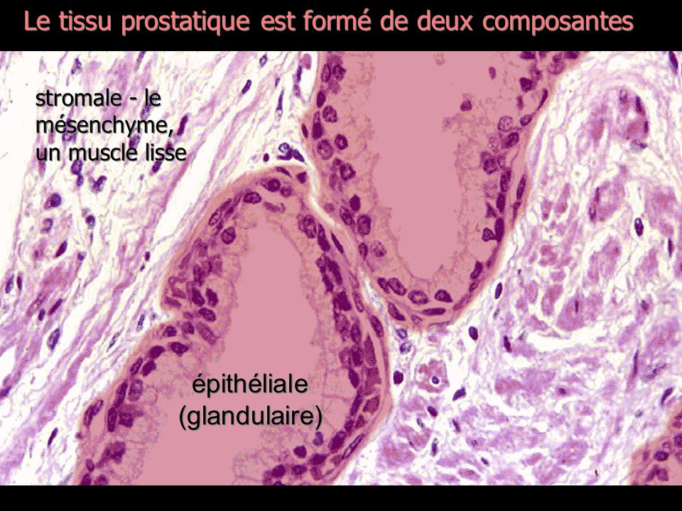 Lhomme et sa prostate…