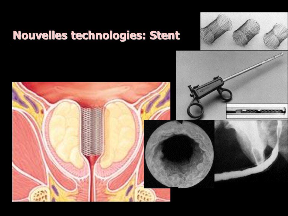 Nouvelles technologies Holmium Laser