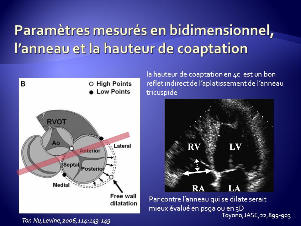 Ton Nu,Levine,2006,114:143-149 la hauteur de coaptation en 4c est un bon reflet indirect de laplatissement de lanneau tricuspide Par contre lanneau qu