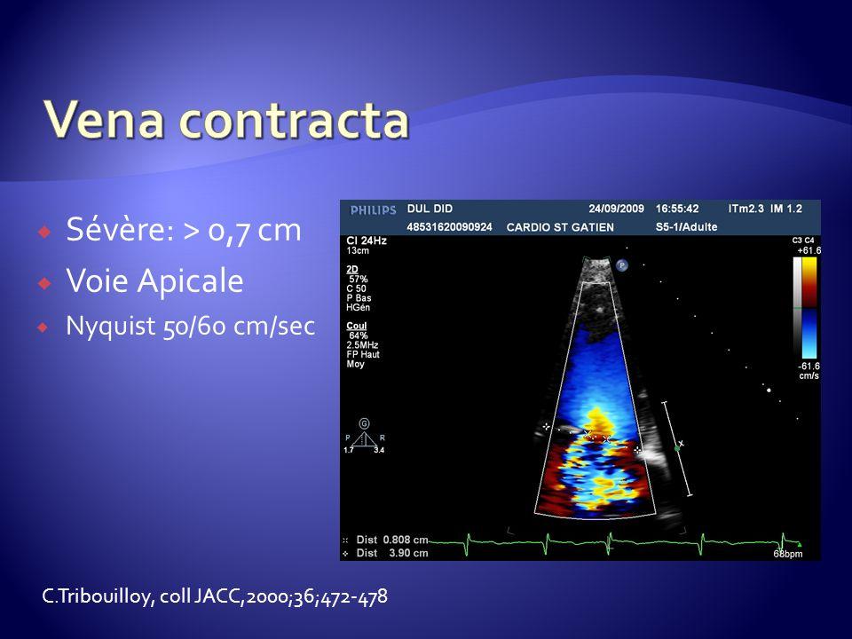 Sévère: > 0,7 cm Voie Apicale Nyquist 50/60 cm/sec C.Tribouilloy, coll JACC,2000;36;472-478