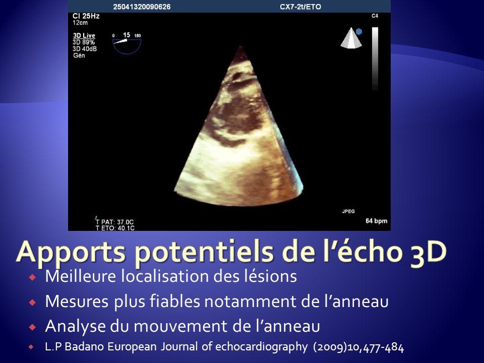Meilleure localisation des lésions Mesures plus fiables notamment de lanneau Analyse du mouvement de lanneau L.P Badano European Journal of echocardio