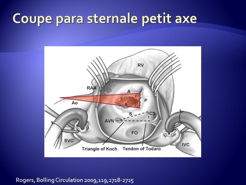 Septale 48 % Antérieure 52 % Postérieure 92 % (Anwar,int J Cardiovasc Imaging 2007;23:717-24)