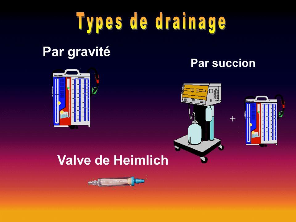 Par gravité Par succion Valve de Heimlich +