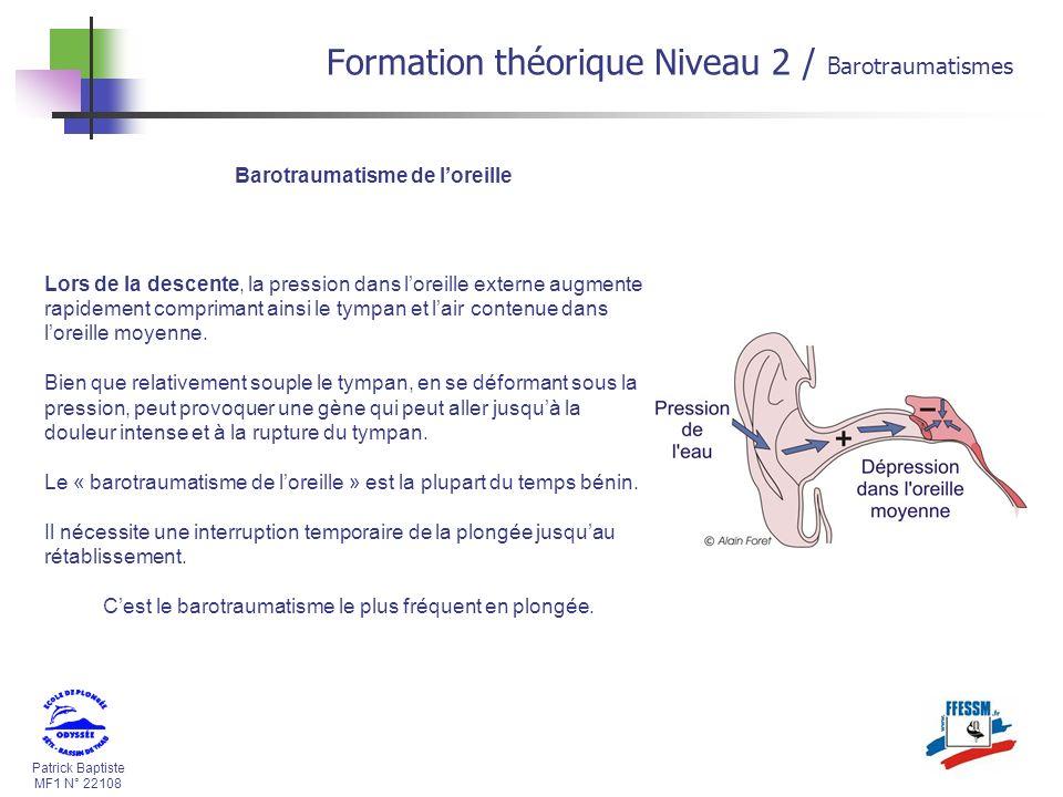 Patrick Baptiste MF1 N° 22108 Barotraumatisme de loreille Lors de la descente, la pression dans loreille externe augmente rapidement comprimant ainsi
