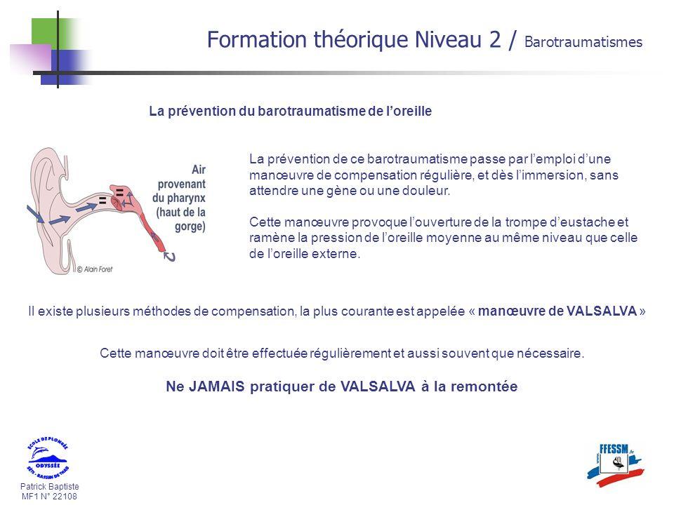 Patrick Baptiste MF1 N° 22108 La prévention du barotraumatisme de loreille La prévention de ce barotraumatisme passe par lemploi dune manœuvre de comp